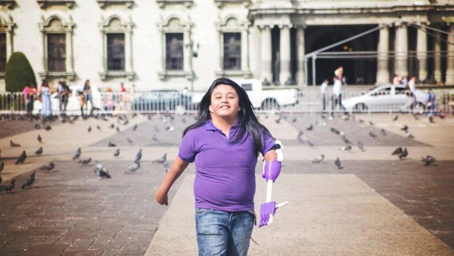 Keila es la primera persona beneficiada con una prótesis hecha en una impresora 3D en Guatemala. (Foto: Facebook Imprende)