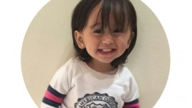 Ella es Valentina, una pequeña guatemalteca de dos años que necesita de tu ayuda para recuperarse. (Foto: Cortesía)