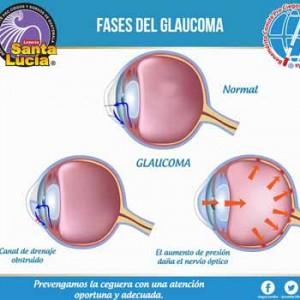 Examen de la vista gratuito en la Guatemala en marzo 2017